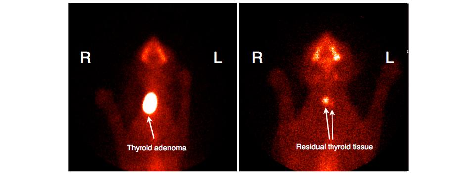 Thyroid-Scan-gallery-image1